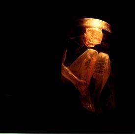 アリス イン チェインズ『ナッシング・セーフ-ベスト-』