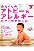 赤ちゃんのアトピー&アレルギー 肌ケアがわかる本