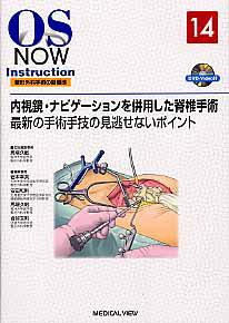 内視鏡・ナビゲーションを併用した脊椎手術 OS NOW Instrction14 DVD付