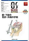 膝・下腿の骨折・外傷の手術 OS NEXUS1