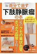 自分で治す下肢静脈瘤の本 足のくもの巣状血管、ボコボコ血管を防ぐ!