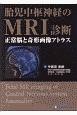 胎児中枢神経のMRI診断 正常脳と奇形画像アトラス