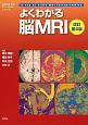 よくわかる脳MRI 改訂第4版 KEY BOOKシリーズ